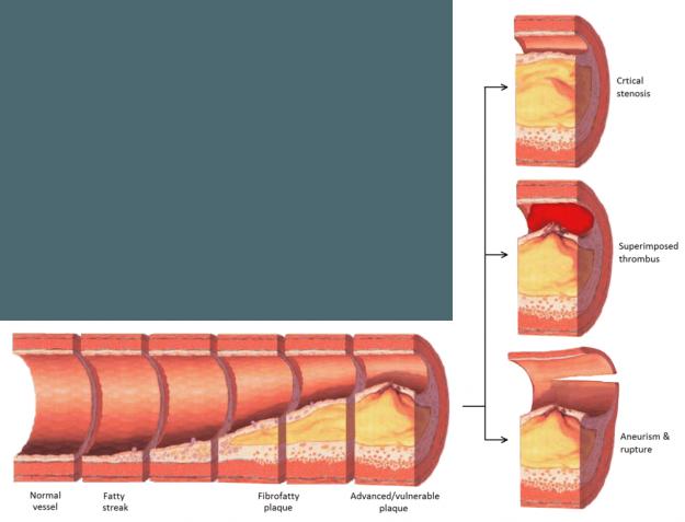 diese abbildung zeigt den ablauf einer artherosklerose