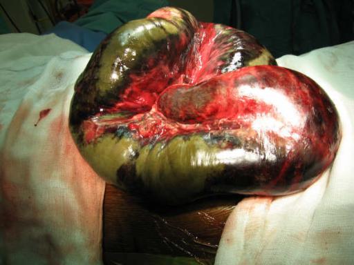 dieses bild zeigt die fortgeschrittene nekrosedieses bild zeigt die fortgeschrittene nekrose eines darms