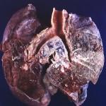 kleinzelliges Lungenkarzinom