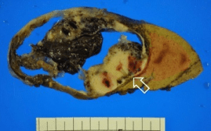 makroskopisches Bild eines Tumors