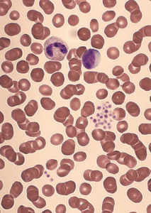 psudothrombozytopenie