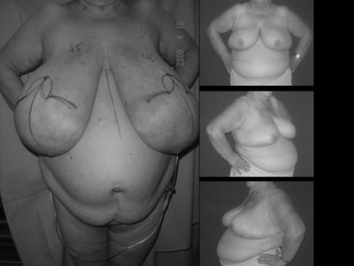 schwere-symptomatische-makromastie