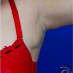 zusaetliches-brustdruesengewebe