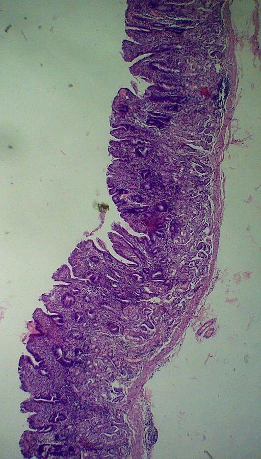 Diät oberflächliche chronische Gastritis