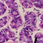 Parietal cells