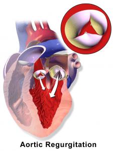 Aortenklappenisuffizienz