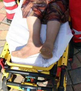 Außenrotiertes und verkürztes Bein bei Schenkelhalsfraktur rechts