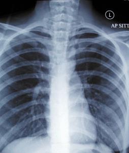 Boerhaave-Syndrom Röntgenaufnahme