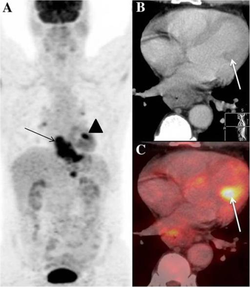 CT-PET-oesopharguskarzinom
