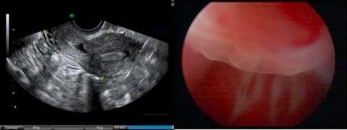 Defekt im Uterus
