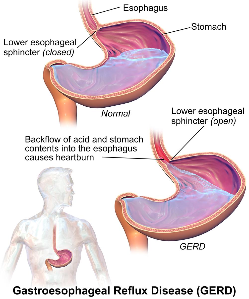 Refluxkrankheit Und Barrett Sophagus Diagnostik Therapie