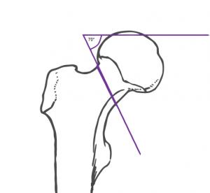 Pauwels-III-Fraktur, Winkel etwa 70°