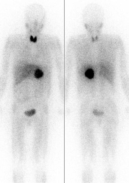 Phaeochromozytom-Scan