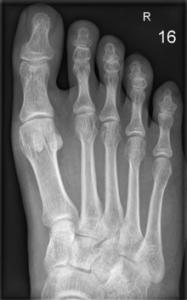Röntgenbild Fußknochen