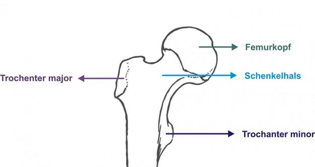 Schenkelhals und Hüftkopf