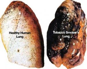 Vergleich einer gesunden Lunge (links) mit einer Raucherlunge (rechts)