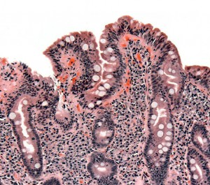 biopsie-zoeliakie