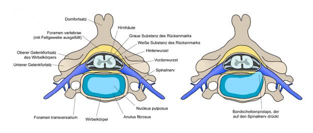Schnitt durch die Strukturen der Wirbelsäule (links), Bandscheibenvorfall (rechts)