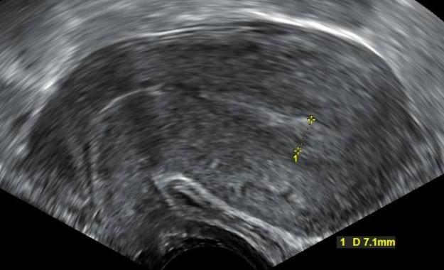 dieser ultraschall zeigt eine komplette fehlgeburt