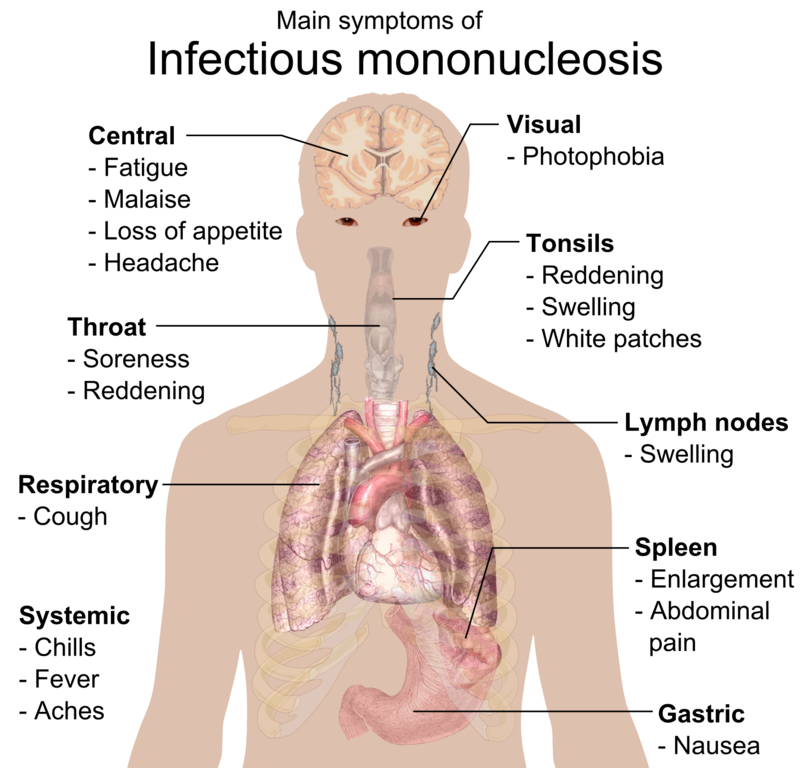 Pfeiffersches Drsenfieber Infektise Mononukleose