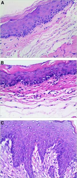 Ösophagus Histologie