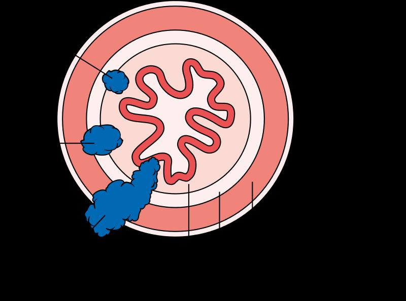 stadien-oesophaguskarzinom