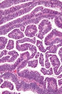 Adenokarzinom-histologisch