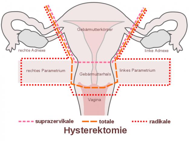 hysterektomie-schema
