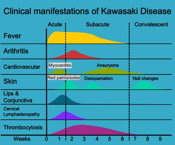 kawasaki syndrom