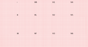 12 Kanal EKG
