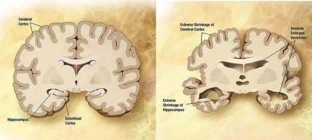 alzheimers disease brain comparison