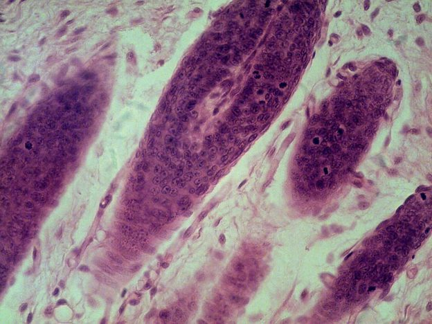 Hair Follicles in Mammal Skin