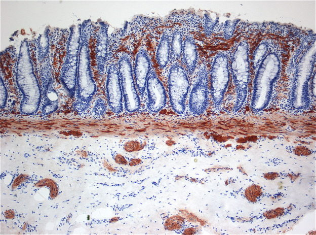 histopathological image of hirschsprung disease
