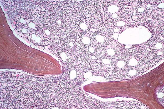 increased reticulin in marrow in myeloproliferative disorder