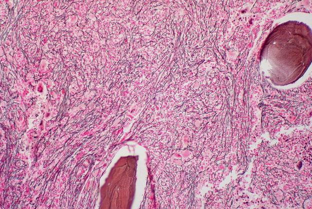 myelofibrosis reticulin stain