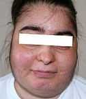 Face of a woman suffering from Cushing's syndrome