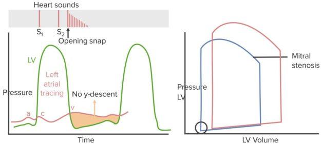 mitral-stenosis