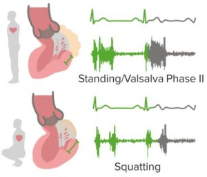 Maneuvers-Mitral-Valve-Prolapse