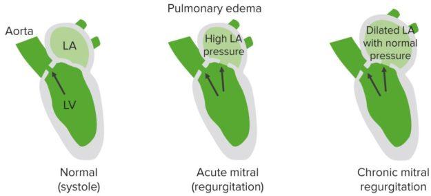Acute-mitral