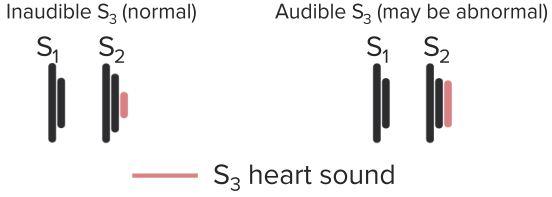 Heart-Sound-S3