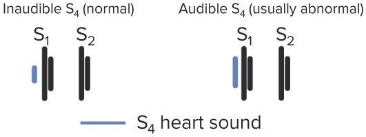 Heart-Sound-S4