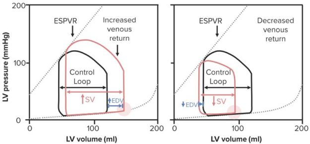 Effects-of-Preload-on-PV-Loops