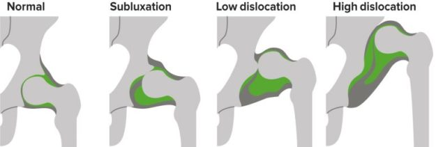 Developmental Dislocation (Dysplasia) of the Hip (DDH) in ...