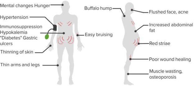 Cushingoid-Symptoms
