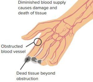 Etiology-Thromboangitis-obliterans