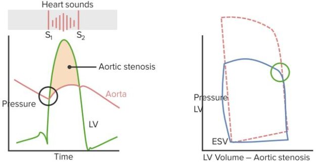 Heart-Sounds-Aortic-Stenosis