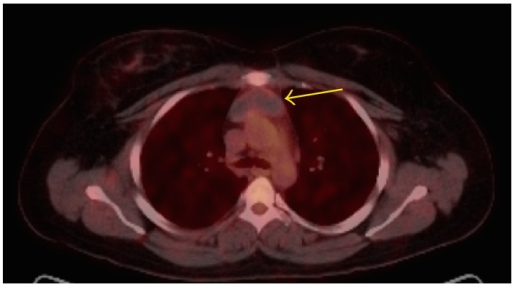 Imaging of the Mediastinum | The Lecturio Online Medical Library