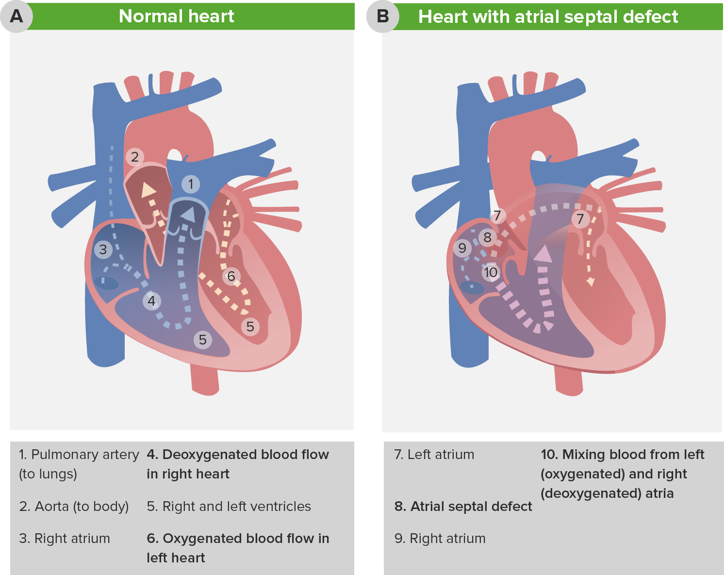 Pediatric Atrial Septal Defects — Classification and Surgery ...