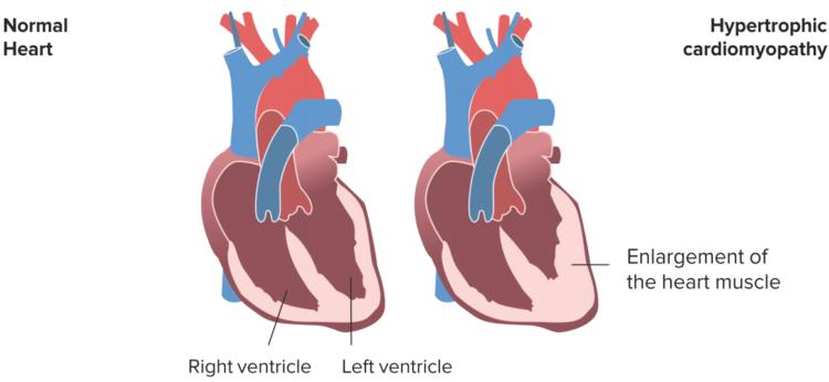 hypertrophic-cardiomyopathy1