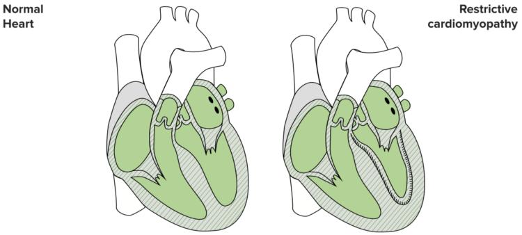 restrictive-cardiomyopathy